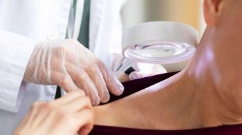 Cilt Kanserleri Nedir? Tedavisi Nasıl Yapılır?